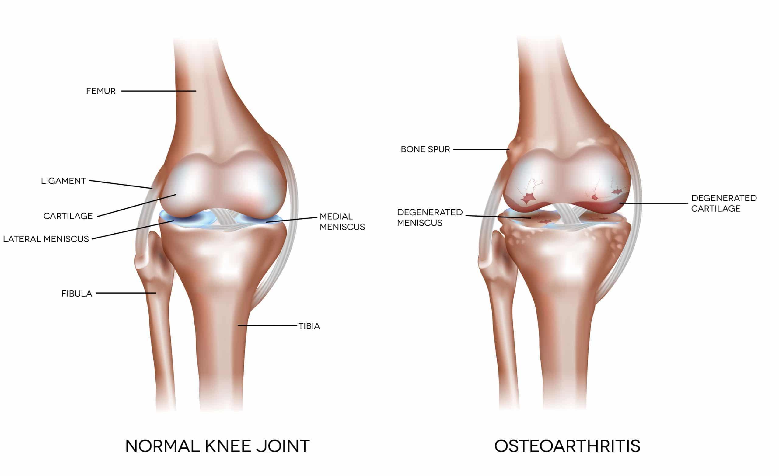 Knee Osteoarthiritis