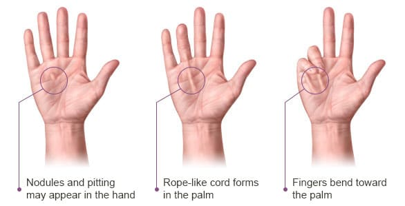 Dupuytrens Contracture Progression