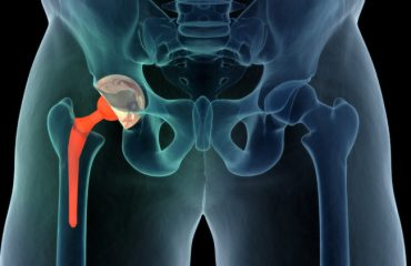 hip-replacement