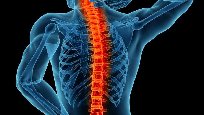 Spine Surgery Rehabilitation And Exercise Post Spine Surgery
