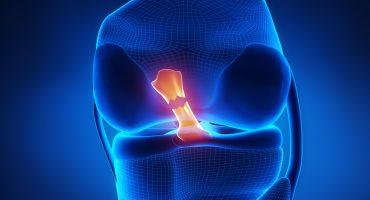 anterior-cruciate-ligament